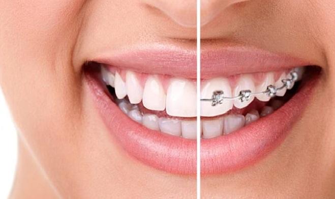 ortodontiev2